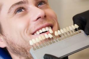 Les couronnes dentaires